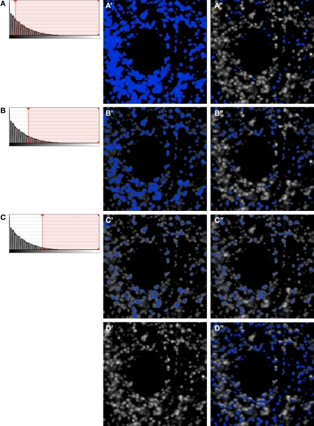 Iterative segmentation process for automated quantification of fluorescent structures (Fish et al., 2008). (A–C) Show the intensity histograms with the lower bounds for segmentation progressively migrating towards higher values, which results in fewer and fewer objects being masked (A′–C′). At each step, only mask objects within the selected size range are kept (A′′–C′′). After each iterative step the resulting masks (A′′–C′′) are combined. Even after only these 3 iterative steps, the combined mask shown in (D′′) already has excellent object representation [compare with the unmasked data in (D')]. In practice any number of iterations can be chosen so as to ensure comprehensive masking of objects (see e.g., Figures 2–5).