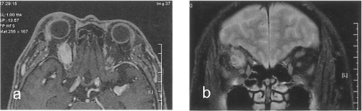Orbital MRI T1-weighted gadolinium enhanced images. (a) Axial view demonstrates the fusiform enlargement of the right superior rectus with marked enhancement. (b) Coronal view demonstrates the marked enlargement of the right superior rectus with an irregular pattern of enhancement.