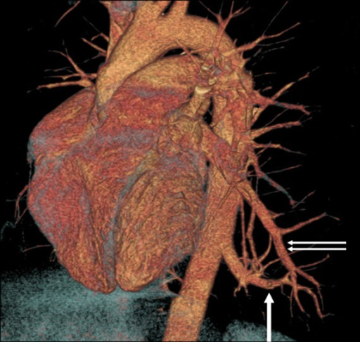 Volume rendering image demonstrates an artery (arrow) originating from the descending aorta and supplying the intralobar pulmonary sequestration. Also note a large draining vein (double arrow) originating from the sequestration and draining into the left inferior pulmonary vein.