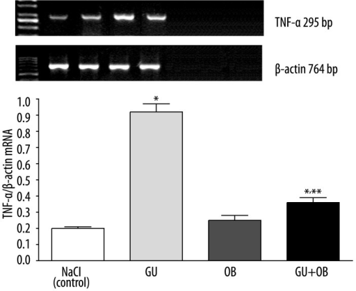 Effect of saline (NaCl), induction of gastric ulcers (GU) or administration of obestatin (OB) at the dose of 8 nmol/kg/dose on gastric mucosal expression of mRNA for TNF-α and β-actin, and densitometric analysis of TNF-α/β-actin ratio. Mean ±SEM. N=10 in each group of animals. * P<0.05 compared to saline-treated rats without induction of ulcers (control); ** P<0.05 compared to saline-treated rats with ulcers.