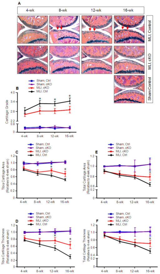 Decelerated osteoarthritis progression in Mmp13Col2ER mice. Tamoxifen was administered when matrix metalloproteinase (MMP13) conditional knockout (cKO) mice (Mmp13Col2ER) and Cre-negative control mice were two weeks old (1 mg/10 g body weight, i.p., daily for five days). Meniscal-ligamentous injury (MLI)-induced osteoarthritis (OA) surgery was performed on the right hind-limbs when the mice were 10 weeks old. The left hind-limbs were used as sham controls. (A) Knee joint samples were harvested 4, 8, 12, or 16 weeks post-surgery and Alcian blue/Hematoxylin/Orange G staining was performed. Histological results showed decreased articular cartilage degradation in Mmp13Col2ER mice 8, 12 and 16 weeks post-surgery. (B) Histological grading by blinded observers confirmed decreased articular cartilage degradation in Mmp13Col2ER mice at 8, 12, and 16 weeks compared to control Cre-negative mice (*P < 0.05). (C) Tibia articular cartilage area was quantified by tracing the Alcian blue-positive area in the proximal tibia. There was no significant difference 4 and 8 weeks post-surgery in Mmp13Col2ER MLI mice versus control MLI mice. The tibia cartilage area was increased 21% in Mmp13Col2ER MLI mice compared to control MLI mice 12 weeks post-surgery (*P < 0.05) and increased 31% 16 weeks post-surgery (*P < 0.05). (D) Tibia thickness was quantified by tracing the Alcian blue-positive thickness in the center of the tibial plateau. There was no significant difference in tibial cartilage thickness at 4 or 8 weeks post-surgery. Tibia cartilage thickness was increased 29% in Mmp13Col2ER MLI mice compared to control MLI mice 12 weeks post-surgery (*P < 0.05) and increased 50% 16 weeks post-surgery (*P < 0.01). (E) Total articular cartilage area was quantified by tracing the Alcian blue-positive area in both the proximal tibia and distal femur. No significant differences were detected 4, 8, and 12 weeks post-surgery. Total cartilage area increased 18% in Mmp13Col2ER MLI mice compared to control MLI mice 16 weeks post-surgery (*P < 0.01). (F) Total cartilage thickness was quantified by tracing the Alcian blue-positive thickness in the center of the proximal tibia and distal femur. No significant differences were detected at 4, 8, and 12 weeks post-surgery. Total cartilage thickness increased 39% in Mmp13Col2ER MLI mice compared to control MLI mice 16 weeks post-surgery (*P < 0.01).