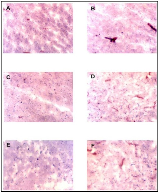 (original magnification, X100): Immunohistology for TGFβ, IL-1β & TNFα. (A–B) TGFβ staining (intravascular & perivascular). (A) NCNSI section: moderate in some fields (average score +). (A) CM/PBM section: strong in all fields (average score +++). (C–E) IL-1β staining (intravascular, perivascular & parenchymal). (C) PBM section: moderate in some fields (average score +). (D) CM section: strong in all fields (average score +++). (E) NCNSI section: no staining in all fields (average score −). TNFα staining (intravascular, perivascular & parenchymal). CM/PBM section: strong in all fields (average score +++).