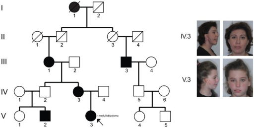 The five-generation pedigree.The family consists of five affected individuals spanning eight meioses. The proband (V.3) is indicated by an arrow. We were able to obtain consent from individuals IV.3 and V.3 to publish photos.