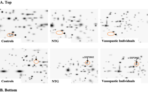 Proteomics-imaging of blood-biomarkers (ex vivo identification in circulating leukocytes) specific for normal-tension glaucoma (NTG). A. Top: The pathology-specific protein-cluster is completely suppressed in both NTG and vasospasm in contrast to controls. B. Bottom: The marked protein SSP2602 is highly up-regulated in both NTG and vasospasm; this protein normally is not expressed by circulating leukocytes of controls – healthy individuals without vasospasm [4]