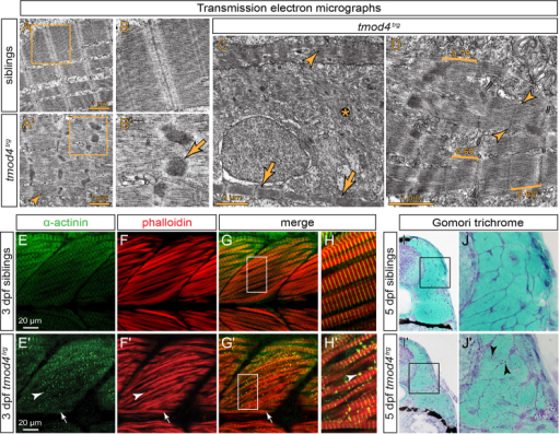 Cytoplasmic rod formation in tmod4trg. (A) Transmission electron micrographs of skeletal muscle from siblings at 3 dpf display the typical myofibril striation and well-aligned sarcomeres. (A′) In contrast, the myofibrils of tmod4trg mutants appear non-uniform, and filaments are misoriented. Sarcomere H-zones are less defined (arrowhead) and Z-disks are widened with electron-dense inclusions of various sizes and shapes. (B,B′) Magnified views of the respective boxes in A and A′ reveal the lattice pattern of the cytoplasmic rods (arrow) that is typical for nemaline rods of individuals with NM. (C) In addition to abnormal sarcomeres (arrowhead), organised sarcomeres (arrows) rarely form in tmod4trg, and filaments are often scattered throughout myofibres (asterisk). (D) Brackets mark the various lengths of thin filaments of tmod4trg from short (0.60 μm) to long (0.75 μm). In organised myofibrils, thin filaments are of lengths comparable to those of siblings (0.68 μm). Indistinct H-zones are marked by arrowheads. (E–H) At 3 dpf, labelling of F-actin with phalloidin (red) and actinin using an antibody (green) shows the typical myofibril striation in siblings. (G,H) Merged images, H shows magnification of the boxed area indicated in G. (E′-H′) In tmod4trg mutants, actinin and actin colocalize in cytoplasmic aggregations. In contrast to the internal fast myofibres that show abundant cytoplasmic rods (arrowheads), the superficial slow muscle fibres, which in zebrafish form a single layer on the lateral outline of the somites, do not display cytoplasmic rods (arrows). (G′,H′) Merged images, H′ shows magnification of the boxed area indicated in G′. (I,I′) On cross sections at 5 dpf, Gomori trichrome staining indicates the presence of cytoplasmic rods in tmod4trg that are reminiscent of nemaline rods. (J,J′) Magnifications of boxes indicated in I and I′, respectively. Arrowheads mark nemaline-like cytoplasmic rods.