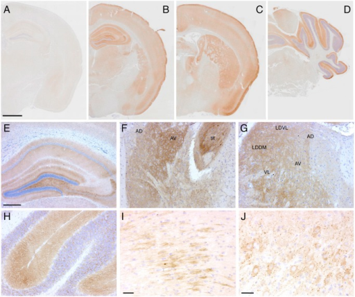 Tg(FFI) mice show cerebral accumulation of protease-resistant PrP.Immunohistochemical detection of PrP using monoclonal antibody 12B2 after PK digestion of sections in a 291-day-old Tg(WT-E1+/-)/Prnp0/0 mouse (A) and in three 338-day-old Tg(FFI-26+/-)/Prnp0/0 mice (B-J). The pattern of PrP deposition was either diffuse, as in the cerebral cortex, hippocampus, thalamus and molecular layer of the cerebellum (B-H), strip-like as in the fimbria (I), or dot-like as in the mesencephalic trigeminal nucleus (J). AD, anterodorsal thalamic nucleus; AV, anteroventral thalamic nucleus; st, stria terminalis; LDDM, laterodorsal thalamic nucleus, dorsomedial part; LDVL laterodorsal thalamic nucleus, ventrolateral part; VL, ventrolateral thalamic nucleus. Scale bars = 1 mm in A, B, C and D, 250 μm in E, F, G and H, and 125 μm in I and J. Results were similar using the 3F4 antibody in Tg(FFI-K5+/-)/Prnp0/0 mice expressing epitopically-tagged mutant PrP.