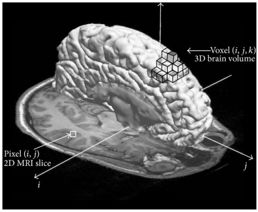 Illustration of image elements in the MRI of the brain. An image pixel (i, j) is represented with the square in the 2D MRI slice and an image voxel (x, y, z) is represented as the cube in 3D space.