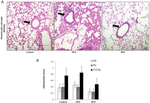 Lack of cellular inflammation in lungs of mice with metabolic syndrome.(A) Lung sections were stained with haematoxylin and eosin to estimate airway inflammation. (B) Inflammation score of the lungs was evaluated by experimentally blind experts and shown as perivascular (PV), peribronchial (PB) and Total (sum of both PV and PB). (Representative images are shown from each group. All photographs are at 10X magnification. Scale bar = 100μm.