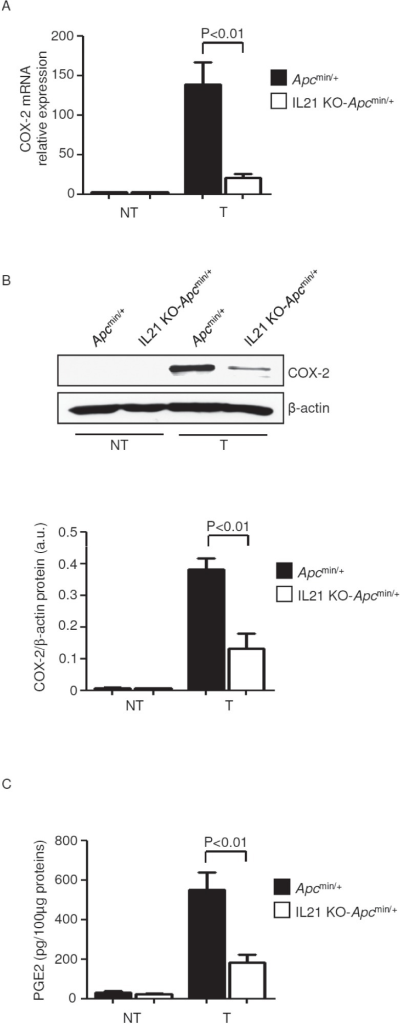 Reduced expression of COX-2/PGE2 in the tumors of IL-21 KO-Apcmin/+ mice ACOX-2 was assessed by real-time PCR in colon tissues taken from Apcmin/+ mice and IL-21 KO-Apcmin/+ mice killed on day 56. Data indicate mean ± SEM of two independent experiments in which at least two mice per group were considered. NT, non-tumor area, T, tumor area. B. Representative western blotting showing COX-2 in colon tissues taken from Apcmin/+ mice and IL-21 KO Apcmin/+ mice killed on day 56. β-actin was used as loading control. One of four representative experiments is shown. Bottom inset. Quantitative analysis of COX-2/β-actin protein ratio in total extracts of T and NT colon tissues taken from Apcmin/+ mice and IL-21 KO-Apcmin/+ mice killed on day 56 as measured by densitometry scanning of western blots. Values are expressed in arbitrary units (a.u.) and indicate the mean ± SEM of all experiments (n=4). C. PGE2 levels were assessed by ELISA in colon tissues taken from Apcmin/+ mice and IL-21 KO-Apcmin/+ mice killed on day 56. Data indicate mean ± SEM of two independent experiments in which at least three mice per group were considered.