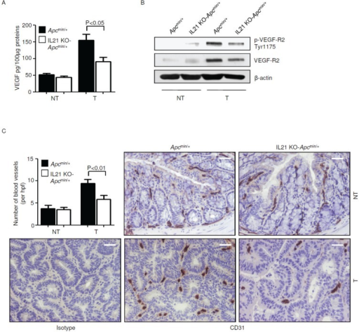 Reduced angiogenesis in the tumors of IL-21 KO-Apcmin/+ miceA. VEGF expression was assessed by ELISA in colon tissues taken from Apcmin/+ mice and IL-21 KO-Apcmin/+ mice killed on day 56. Data indicate mean ± SEM of two independent experiments in which at least four mice per group were considered. NT, non-tumor area, T, tumor area. B. Representative western blotting showing p-VEGF-R2 Tyr1175 and VEGF-R2 expression in colon tissues taken from Apcmin/+ mice and IL-21 KO-Apcmin/+ mice killed on day 56. β-actin was used as loading control. One of four representative experiments in which similar results were obtained is shown. C. Representative immunohistochemical staining of CD31 in colon sections taken from Apcmin/+ mice and IL-21 KO-Apcmin/+ mice killed on day 56. Staining with isotype control IgG is also shown. The scale bars are 20μm. One of four representative experiments is shown. Upper left inset. Quantification of blood vessels in colon sections taken from Apcmin/+ mice and IL-21 KO-Apcmin/+ mice killed on day 56. Data are presented as mean values of blood vessels per high power field (hpf) ± SEM of two independent experiments in which at least two sections per group were analyzed.