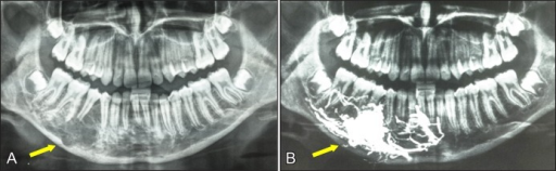 A = initial orthopantomogram of the patient number 4, showing an extended, ill-defined IVA at the right mandibular body; B = orthopantomogram of the same patient, directly after embolization with Onyx®, showing compact lodgement of the embolic agent in the varix.