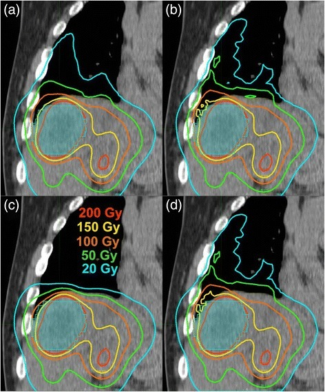 A coronal plane through the RL and liver illustrating salient differences between the four different VBDM: MC (a), LD (b), SK (c), SKD (d). The tumor (shaded in cyan) is 5.2 cm in length in the cranial-caudal direction