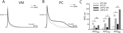 Features of action potentials recorded at 1 Hz.Panel (A) Representative VM action potentials. 0 mV represented by horizontal line; gray trace: WT, black trace: ΔKPQ. Panel (B) Representative PC action potentials. 0 mV represented by horizontal line; gray trace: WT, black trace: ΔKPQ. Panel (C) Bar graphs summarizing action potential duration measured at 50% of repolarization (APD50), 70% repolarization (APD70) and 90% repolarization (APD90). White bar: WT-VM, light gray bar: WT-PC, black bar: ΔKPQ-VM, dark gray bar: ΔKPQ-PC. *p < 0.05, **p < 0.01. WT-VM: N = 16, 6 animals; ΔKPQ-VM: N = 12, 5 animals; WT-PC: N = 16, 6 animals; ΔKPQ-PC: N = 20, 5 animals. APD: action potential duration.