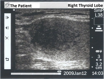 Thyroid ultrasonography image of right thyroid lobe