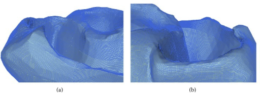 Full scale complete human heart mesh derived from CT images. Panels (a) and (b) show two enlarged views of the high-resolution unstructured all-hexahedral mesh used to solve the monodomain equations.