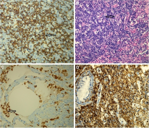 Pathology and immunohistochemistry.Notes: (A) The arrow points to Hodgkin lymphoma cells expressing CD30. The image was obtained by staining CD30 when the disease was diagnosed in May 2012. (B) The arrow points to Hodgkin Reed–Sternberg cells surrounded by a large number of inflammatory and immune cells in an involved lymph node. The image was obtained from the initial involved lymph node. (C) The arrow points to the large cells expressing CD30 admixed with lymphocyte cells. These larger cells also expressed CD15, but we could not exclude the possibility of lung involvement. However, the patient exhibited classical B symptoms and experienced recurrence with incomplete remission. According to the PET/CT examination, the disease was classified as stage IV B lymphoma in September 2013. (D) After ASCT failure, the patient received six cycles of brentuximab vedotin treatment. However, the disease progressed after these therapies in April 2014. Then, through fiberoptic bronchoscopy lesion biopsy, the patient's multiple bilateral pulmonary lesions were diagnosed with involved classical Hodgkin lymphoma cells. Magnification (A and B) is 40×10 and (C and D) is 100×10.Abbreviations: ASCT, autologous stem cell transplantation; CT, computed tomography; PET, positron emission tomography.