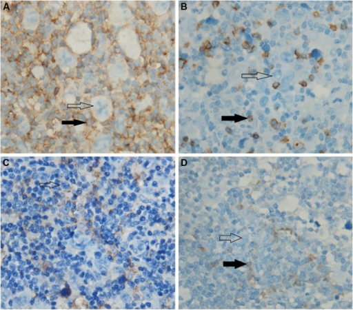 Immunohistochemistry (the initial involved lymph node).Notes: (A) Malignant Hodgkin Reed-Sternberg cells were surrounded by CD3+ CD4+ T cells. (B) Hodgkin Reed-Sternberg cells were interspersed with CD3+CD8+ T cells which are considered as the background infiltrate cells. (C) In the initial involved lymph node, nearly 40% of HL cells and 15% of surrounding CD4+ T cells expressed PD-L1, but the background cells did not express PD-L1. (D) The tumor cells and surrounding cells were negative for PD-1 expression, and nearly 25% of background cells were positive. The blank arrows indicate the Hodgkin lymphoma cells. The solid arrows indicate tumor infiltrating lymphocyte. Magnification is 100×10.