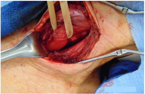 Smooth esophagus after removal of cystic lesion. No connection to the esophageal lumen is present.