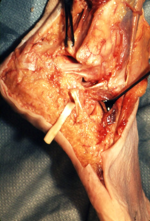 peroneus (fibularis) longus tendon