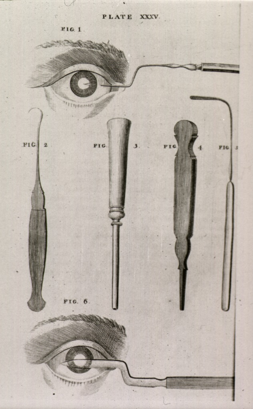 <p>Instruments for cataract surgery.</p>