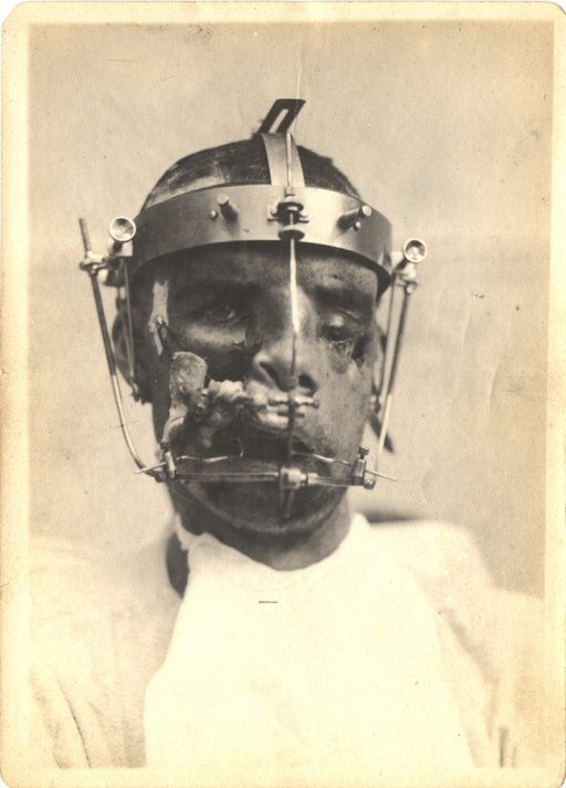 <p>Black and white photograph of an injured soldier with massive facial trauma.  The soldier is wearing a metal support attachment around his head from which bars extend past the face down to the chin. Significant damage can be seen on the left eye, nose, right cheek, and mouth.</p>