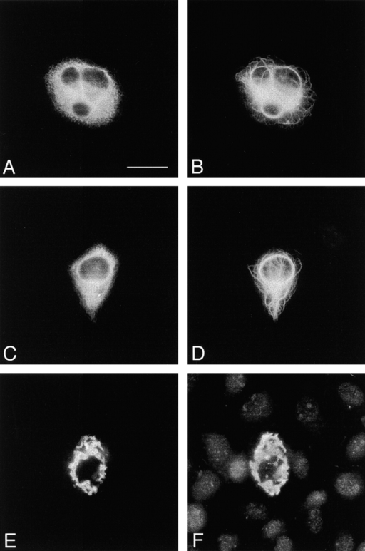 Interactions of mBPAG-C1 with aggregates of NF-L/ NF-M proteins. SW13.cl.2Vim− cells from transient transfections  of pcDNA-FLAG-mBPAG-C1 with (A and B) pRSVi-NFL1-415 and pRSVi-NFM; (C and D) pRSVi-NFL and pRSVi-NFM1-421; (E and F) pRSVi-NFL1-415 and pRSVi-NFM1-421 were  double-labeled with mouse anti-FLAG M2 mAb (A, C, and E)  and rabbit polyclonal antibody against NF-L (B, D, and F). A  normal filament network could be formed by wild-type NF-L and  tailless NF-M or by tailless NF-L and wild-type NF-M, but  mBPAG-C1 did not colocalize with these filament networks.  mBPAG-C1 only associated with the aggregates formed by tailless NF-L and tailless NF-M. Bar, 10 μm.