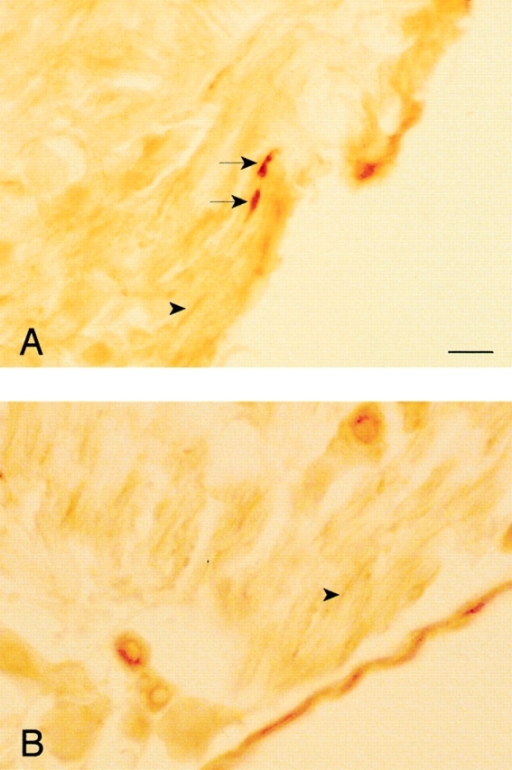 Peripherin can be detected in the axonal swellings of dt  mice. Cryosections of the DRG from (A) dt mouse and (B) normal littermate were immunostained with peripherin mAbs. Arrows point to the peripherin staining in axonal swellings, whereas  arrowheads point to peripherin staining in normal looking axons.  Bar, 10 μm.