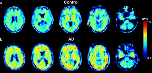 Representative parametric images of Logan DVR using 125 min of data (with t*=35 min) and white matter as reference input in a control subject (a) and an AD patient (b)