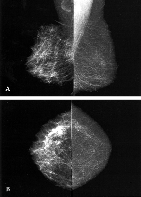 Mastitis in a 37-year-old woman with breast pain, swelling, and an erythematous change of right breast of 2 weeks duration. After antibiotic treatment the clinical symptoms disappeared. A & B, Mediolateral and craniocaudal mammogram show diffuse skin thickening and accentuated Cooper's ligament.