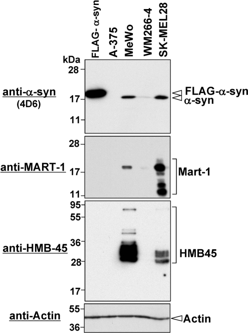 Expression levels of α-synuclein in human melanoma cell lines.Expression of endogenous α-synuclein was examined in melanoma cell lines by Western blotting using mouse monoclonal anti-α-synuclein antibody 4D6. Total cell lysates of HeLa cells expressing FLAG-tagged α-synuclein and SK-MEL28 cells were loaded as positive controls. To demonstrate expression of melanoma markers, we performed Western blotting using monoclonal antibodies against MART-1 and HMB-45. To demonstrate equal loading amounts of total cell lysates, Western blotting using anti-actin antibody was also performed (bottom panel). The detected proteins are indicated on the right. Molecular size markers are shown in kilodaltons.