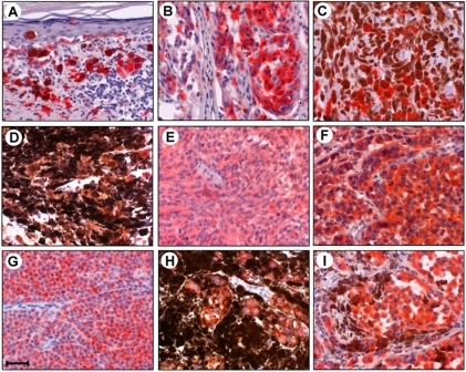 Expression of α-synuclein in human malignant melanoma tissues.Tissue sections of 132 melanoma samples were immunostained with mouse monoclonal anti-α-synuclein antibody 4D6 (see text for identification of samples). The sections were then incubated with an alkaline phosphatase-conjugated anti-mouse IgG. After washing, Liquid Permanent Red substrate was used to develop the reaction and detect α-synuclein-positive cells. The sections were then counterstained with hematoxylin and analyzed by microscopy. The localization of α-synuclein is shown by the red color of Liquid Permanent Red substrate. Nuclear counterstaining is shown by the blue color of hematoxylin. Melanin pigments are brown in melanoma cells. Scale bar indicates 50 µm.