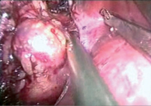 Dissecting adrenal gland tumour.
