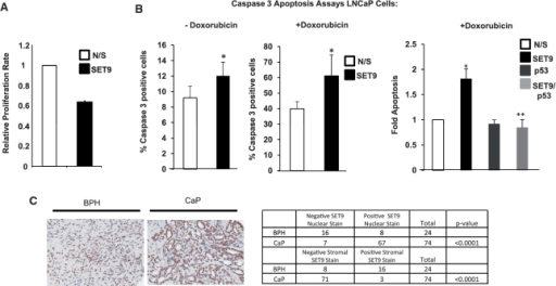 SET9 regulates LNCaP cell proliferation, apoptosis and is aberrantly expressed in prostate cancer. (A) WST-1 proliferation assays were conducted in SET9-depleted and non-depleted LNCaP cells grown in steroid-depleted media supplemented with 10 nM DHT for 72 h. Data represents the mean of three independent experiments. (B) LNCaP cells grown in serum-containing media and transiently transfected with non-silencing (N/S), SET9 and/or p53 siRNAs were treated with and without 0.5 µM doxorubicin for 24-h prior to caspase 3 analysis. Data represents the mean of three independent repeats ± standard error (asterisk represents statistical significance <0.05). (C) Representative SET9 staining of prostate tissue using an anti-SET9 antibody in immunohistochemistry (left panel) and table summarizing nuclear and stromal staining pattern of SET9 in cancer and normal tissue (right panel).
