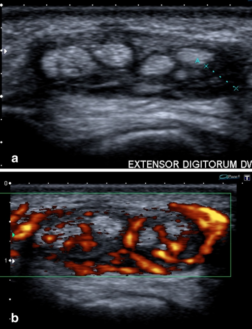 Inflammatory Tenosynovitis In A Patient With Known Rheu Open I