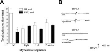 Electrical coupling of EHT grafts to host myocardium. (A) Total activation time on the region of MI, right, left and posterior segments of the investigated hearts. (B) EHT could be uncoupled after acidification of the hearts. * P< 0.05 versus sham-operated MI rats by anova with Mann-Whitney U-test.