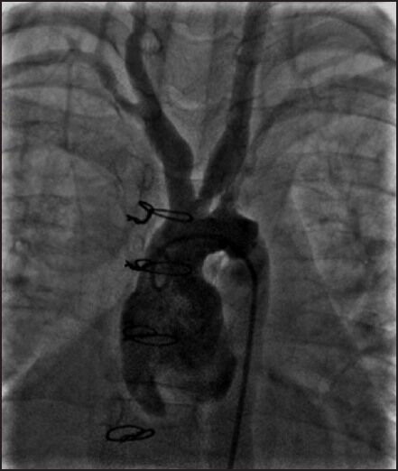 Stenosis of both subclavian arteries