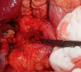 The intra-operative finding after removing the gossypiboma. A penetrating ulcer caused by the gossypiboma was noted over anterior wall of the duodenal bulb.