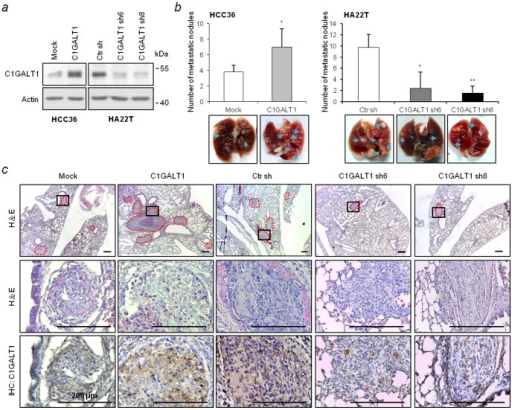 C1GALT1 regulates lung metastasis of HCC cells in NOD/SCID mice.(a) Stable overexpression and knockdown of C1GALT1 in HCC cells. The protein expression levels of C1GALT1 were analyzed by Western blotting. (b) Effects of C1GALT1 on lung metastasis. Metastatic tumors were increased in the C1GALT1 overexpressed group (left) and decreased in the C1GALT1 knockdown groups (right). Representative image of the excised lungs are shown at the bottom, n = 6 for each group. Results are shown as means ± SD. * P<0.05; **P<0.01. Blue arrows indicate the location of the tumor nodules on the lung surface. (c) H&E staining and immunohistochemistry of paraffin-embedded lung sections. Representative images (upper) and amplified images (middle) are shown. Immunostaining revealed the expression of C1GALT1 in metastatic tumors (bottom). The red dash line indicates the location of metastatic tumors. Scale bars  = 200 µm.