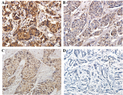 Representative staining images of phosphorylated-mammalian target of rapamycin in matched breast tumor tissues (A) pre- and (B) post-NAC chemotherapy, and phosphorylated-eukaryotic translation initiation factor 4E-binding protein (C) pre- and (D) post-NAC chemotherapy. NAC, neoadjuvant (staining intensity, A, strong; B, moderate; C, moderate; D, negative). Bar, 20 μm; magnification, ×400.