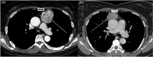 CT images of encapsulated and invasive thymomas.(a) A 61 year old female who underwent surgical resection of an encapsulated thymoma (arrow) (discrete compactness, 0.925; sphericity, 0.703). (b) A 40 year old female who underwent surgical resection of an invasive thymoma (arrow) (discrete compactness, 0.722; sphericity, 0.646). Note that although these two kinds of thymomas cannot be easily differentiated grossly owing to similar CT features, there is a distinct difference in 3D shape features, particularly in discrete compactness, between the encapsulated thymoma and invasive thymoma.