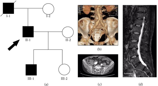 Pedigree and radiologic findings. (a) Pedigree of a Chinese family with aneurysms-osteoarthritis syndrome (AOS). Round symbols indicate female; square symbols, male; fully filled symbols, AOS; unfilled symbols, unaffected; diagonal lines, deceased; arrow, proband. (b) Computed tomography angiography (CTA) of II-2 demonstrated a bilateral common iliac artery aneurysm and abdominal aorta tortuosity. (c) CTA of II-2 revealed mural thrombosis in the right common iliac artery aneurysm. (d) Magnetic resonance image (MRI) of II-2 showed marked degenerative changes of lumbar spine and narrowing of the spinal cord.