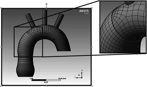 The discrete model of the aortic wrapping with visible finite elements' net