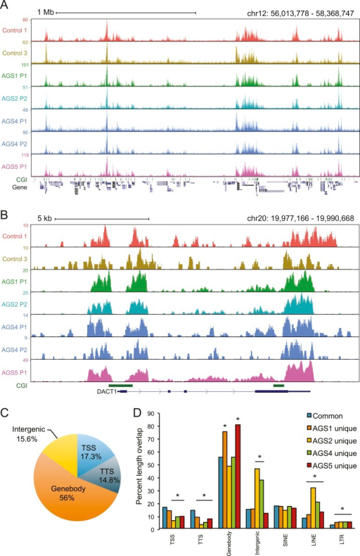 Canonical R-loop genomic patterns are not affected in AGS fibroblasts.(A) Representative screenshot of the broad genomic landscape of R-loop formation over a 2-Mb region. DRIP-seq signal is represented by the accumulation of sequence reads along the genomic sequence. Each sample is color-coded as indicated. CpG islands are indicated together with the positions of genes along the region. (B) A representative screenshot of R-loops formed at the 5′- and 3′-end of the DACT1 gene. (C) Pie chart depicting the distribution of common DRIP peaks at different genomic regions. (D) Percent length overlap of common and AGS-unique peaks over different genomic features. *p < 0.002 and fold change >20% relative to common peaks.DOI:http://dx.doi.org/10.7554/eLife.08007.007