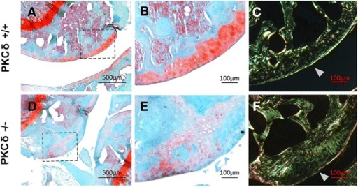 Histological examination of safranin O staining and polarized light microscopy analysis of cartilage from protein kinase C delta (PKC-δ)+/+ and PKC-δ−/− mice. a, d Representative images of articular cartilage stained with safranin O (50×). b, e Higher magnification images of dashed square area of images a and d respectively (200×). c, f Polarized images of direct red stained articular cartilage of the approximate location of b and e, respectively