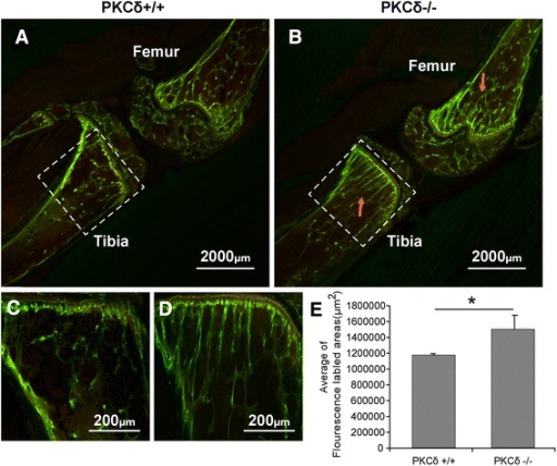 Confocal microscopic analyses of calcein fluorescence revealed an enhanced bone formation in the interface between the growth plate and metaphysis in protein kinase C delta (PKC-δ)−/− mice. a, b The tibia and femur trabecular bone showed an increased fluorescence (indicated by red arrow) in the PKC-δ−/− mice (b) as compared to PKC-δ+/+ mice (a). c, d An enlargement of the tibia from panels a and b respectively. e The measurement of fluorescently labeled intensity per area (μm2) of trabecular bone from panels c and d. *p < 0.05. (Laser scanning confocal microscope: a and b, ×12.5; c and d, ×100)