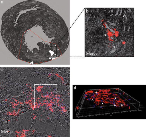 Imaging of SiO2-NPs -labelled hMSCs inside infarcted hearts. a Reconstruction of a 10 µm transverse slice to show the distribution of labelled hMSCs in infarcted hearts. White points: clusters of hMSCs. Red line: perimeter of cell distribution inside infarcted ventricles. b Subset illustrating labelled hMSCs (red) clustered inside ventricular tissue. Magnification 5×, scale bar 200 µm. c Representative confocal reconstruction with superposition of bright field, hMSCs (red) and nuclei (blue). The white dotted line is the perimeter of the volume representation in (d) to underline the higher co-localization between labelled hMSCs (red) and nuclei (blue) due to major cell aggregation typical of the injured area. Magnification 40×, scale bar 50 µm