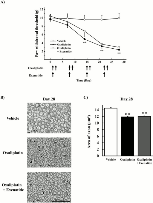 Effects of extended-release exenatide on incidence of mechanical allodynia and axonal degeneration induced by oxaliplatin.Oxaliplatin (4 mg/kg) was administered i.v. twice per week for 4 weeks (days 1, 2, 8, 9, 15, 16, 22, and 23). Extended-release exenatide (100 μg/kg) was administered s.c. once per week for 4 weeks. (A) The von Frey test was performed before the first drug administration (on day 0) and on days 7, 14, 21, and 28. Values are expressed as the mean ± standard error mean of five to six animals. (B) On day 28, the sciatic nerve was harvested, and samples were stained with toluidine blue. Images were captured at 800× magnification. Scale bar = 60 μm. (C) The area of axon was calculated by image analysis software (Image J 1.36) from approximately 3000 to 6000 axons per group. Values are expressed as the mean ± standard error mean of four animals. **P < 0.01 compared with vehicle.