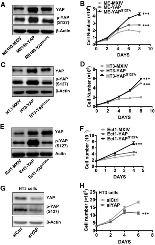 Effect of YAP on the proliferation of normal and cancerous cervical cellsA, C, E Western blot analysis showing levels of YAP and phosphorylated YAP in ME180 cell lines [ME180-MXIV (control), ME180-YAP, and ME180-YAPS127A cells] (A); HT3 cell lines [HT3-MXIV (control), HT3-YAP, and HT3-YAPS127A cells] (C); and Ect1 cell lines [Ect1-MXIV (control), Ect1-YAP, and Ect1-YAPS127A cells] (E). β-Actin was used as a protein loading control.B, D, F Growth curves of YAP-overexpressed ME180 cell lines [ME180-MXIV (control), ME180-YAP, and ME180-YAPS127A cells] (B); HT3 cell lines [HT3-MXIV (control), HT3-YAP, and HT3-YAPS127A cells] (D); and Ect1 cell lines [Ect1-MXIV (control), Ect1-YAP, and Ect1-YAPS127A cells] (F). Each point represents the mean ± SEM (n = 4). ***P < 0.0001, ME180-MXIV vs. ME180-YAP cells and ME180-MXIV vs. ME180-YAPS127A cells on day 8. ***P < 0.0001, HT3-MXIV vs. HT3-YAP cells and HT3-MXIV vs. HT3-YAPS127A cells on day 8. ***P < 0.0001, Ect1-MXIV vs. Ect1-Ect1-YAPS127A cells on day 4. *P < 0.0074, Ect1-MXIV vs. Ect1-YAP cells on day 4.G Western blot showing YAP levels in non-targeting control siRNA (siCtrl)- and YAP siRNA (siYAP)-transfected HT3 cells.H Proliferation of HT3 cells treated with control (siCtrl) or YAP siRNA (siYAP). Each point represents the mean ± SEM (n = 5). ***P < 0.001 compared with siCtrl (siCtrl vs. siYAP, P = 0.0002).Data information: Data in (B), (D), and (F) were analyzed for significance using a one-way ANOVA in GraphPad Prism 5 with Tukey's post hoc test. Data in (H) were analyzed with an unpaired t-test in GraphPad Prism 5 with Welch's correction. Source data are available online for this figure.