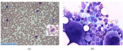 (a) Peripheral smear: marked eosinophilia (most eosinophils show intact cytoplasmic granules). (b) Bone marrow biopsy: normocellular marrow with mild megakaryocytic hyperplasia, eosinophilia, and no increase in blasts. No monoclonal B-cells or immunophenotypically abnormal T-cells are detected.