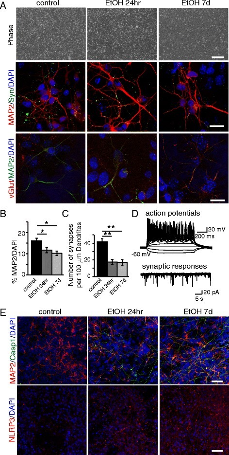 Early ethanol exposure leads to a decrease of NPC-derived neurons. NPCs were pretreated with ethanol for 24hr or 7d and differentiated to neurons for 26 days. a Phase contrast pictures of treated and untreated NPCs after 7 days of differentiation toward the neuronal lineage, and immunofluorescence analysis of neurons differentiated from NPCs showing the synaptic marker synapsin, and glutamatergic marker vGlut. Scale bars: 200 μm (top), 10 μm (middle, bottom). b Graph showing the relative percentage of MAP2+ cells over the total number of DAPI+ nuclei. c Number of synapses quantified by synapsin+ puncta per 100 μm dendrite length under control or ethanol pre-exposure conditions. d Electrophysiological analysis. e Immunofluorescence analysis showing the expression of Casp1, MAP2, and NLRP3. Scale bar: 50 μm. The differences among all the values were not statistically significant unless indicated (* p ≤ 0.05, ** p ≤ 0.01, *** p ≤ 0.001). Student's t-test was utilized for all experiments